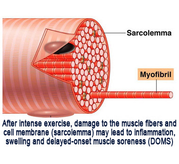 Post Workout Soreness: The Cause & The Cure